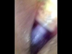 Deep prostate examination ends in fisting Thumb